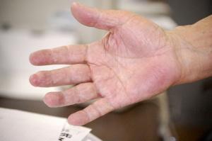 捕虜時代の怪我(本文にある)で中指の先がもげているNさんの手